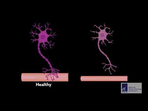 Spinal organoids mimic neurodegenerative disease