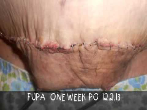 one week po panniculectomy and monsplasty youtube