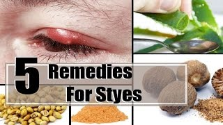 5 Home Remedies for Eyelid Cysts (Chalazions).
