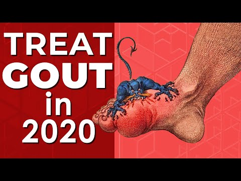 How To Treat URIC ACID And GOUT? Natural Foods To EAT And AVOID (2020)