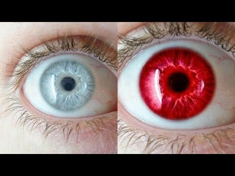 30 Rarest Eye Colors In Humans, 30 Rarest Eye Colors In The World, 30 Types  Of Eye Colors In Humans