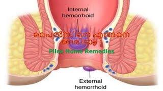 മൂലക്കുരുവിന് (പൈൽസ് ) ചികിത്സ Piles Home Remedies Malayalam| Treatment at Home