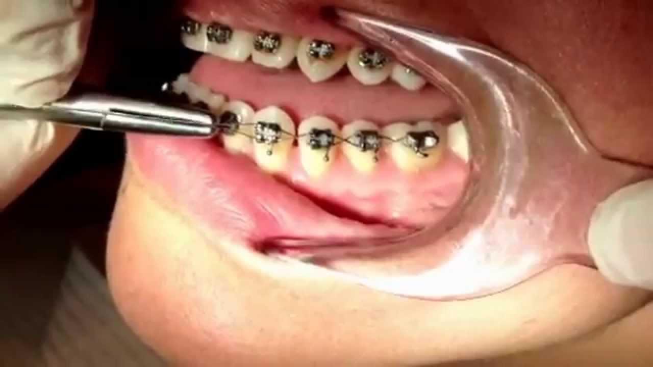Kết quả hình ảnh cho Dental braces fixation