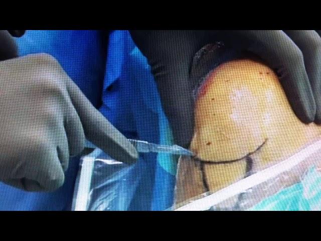 Dr  G  Villaverde  Portales Artroscopia os
