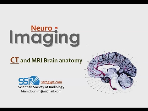 Radiological anatomy of Brain (new version) - DRE 1 - Prof. Dr. Mamdouh Mahfouz