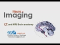 Radiological anatomy of Brain - DRE 1 - Prof. Dr. Mamdouh Mahfouz