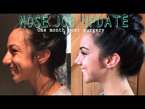 Nose Job || Cast Removal + One Month Update