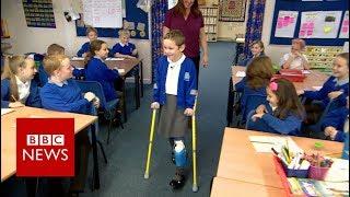 Girl walks into class on prosthetic leg - BBC News