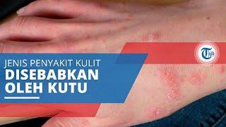 Tugas Mata Kuliah Tekhnik Semisolid dan Liquid Dosen pengampu : apt. Firman Gustaman, M.Si Pandu Nur.