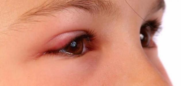 كيفية علاج انتفاخ العين Youtube