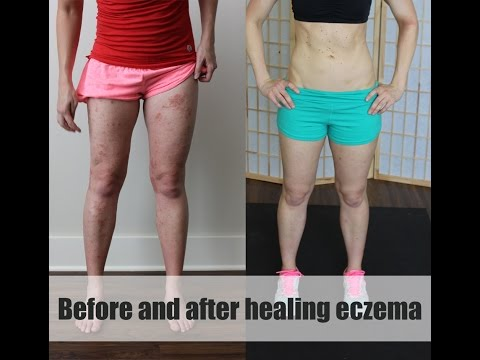 Before and after pics – eczema update. Healing eczema.