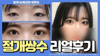 ⭐️학생 쌍수 레전드 후기!! 동일인물 맞습니다⭐️ 절…