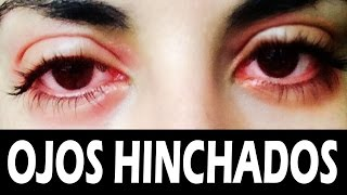 Los rojos por te el llanto? deshaces de ¿Cómo ojos e hinchados