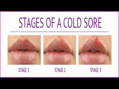 cold sore on lip or pimple best cold sore treatment youtube