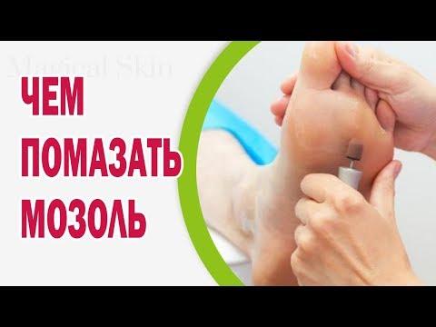 Как быстрее вылечить мокрую мозоль(
