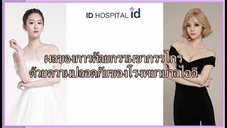 ผลของการศัลยกรรมขากรรไกรด้วยความปลอดภัย โรงพยาบาลไอดี