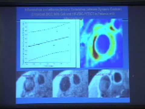 Molecular Imaging of Vascular Disease
