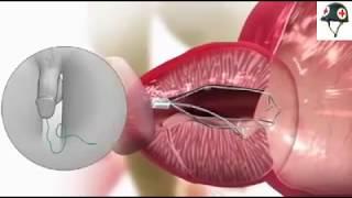 Beginilah salah satu penanganan pada BPH (Benign Prostatic Hyperplasia)