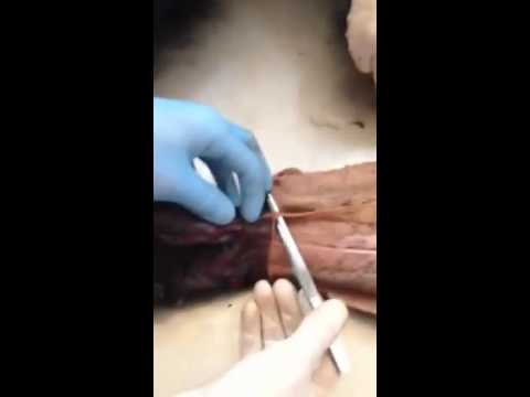cephalic vein in forearm (by mustafa) - youtube, Cephalic Vein