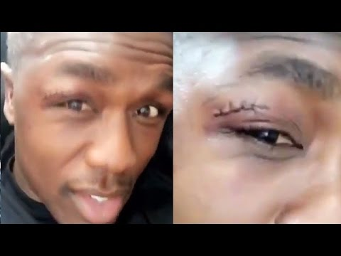 """ANDRE BERTO SPEAKS ON LOSS TO SHAWN PORTER; SHOWS OFF LUMPS AND STITCHES FROM """"ALL THE HEADBUTTS"""""""
