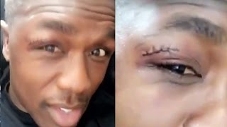 ANDRE BERTO SPEAKS ON LOSS TO SHAWN PORTER; SHOWS OFF LUMPS AND STITCHES FROM