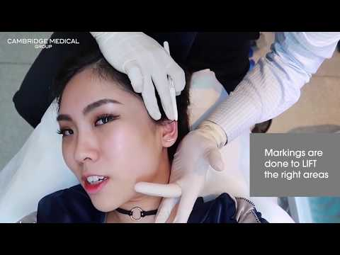 Facelift without needles or surgery? (Now in Singapore)