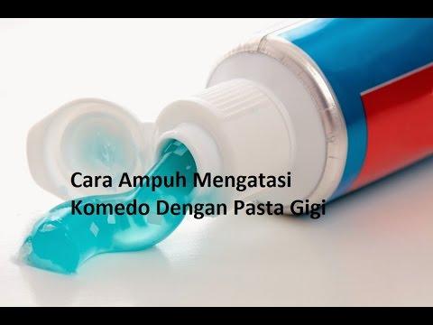 Cara Menghilangkan Karang Gigi Hitam Alami