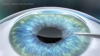 ReLEx SMILE Laser Vision Correction - Minimally Invasive Laser Eye Surgery
