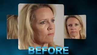 Full Body Makeover Part 2 with Dr. Scott Thompson of Utah Facial Plastics