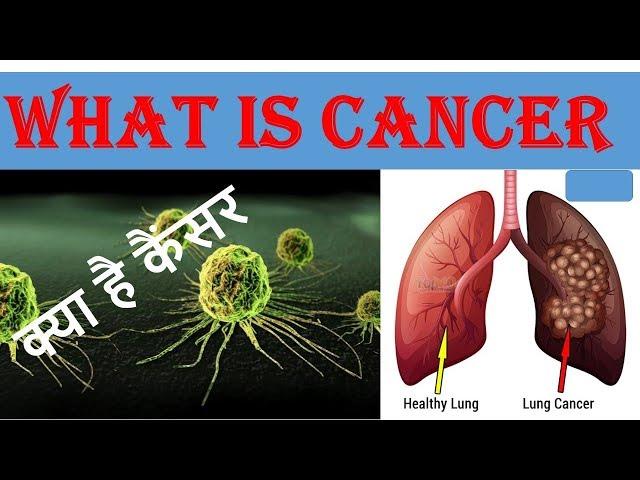 What Is Cancer | क्या है कैंसर | Health Tips | Hindi