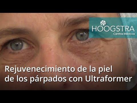 Rejuvenecimiento de la piel de los párpados con Ultraformer (18018)
