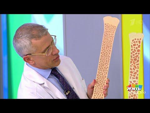 Жить здорово! Саммит по остеопорозу.  03.08.2018