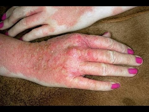 Dyshidrotic Eczema - Pictures, Contagious, Treatment, Causes