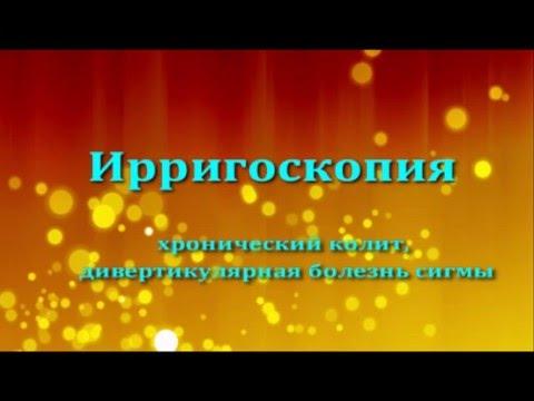 Ирригоскопия, хр колит, дивертикулярная болезнь сигмы