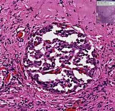 Histopathology Pancreas --Islet cell tumor (insulinoma)