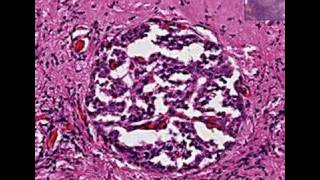 Histopathology Pancreas --Islet cell tumor (insulinoma)