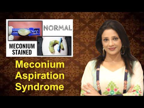 what-is-meconium?