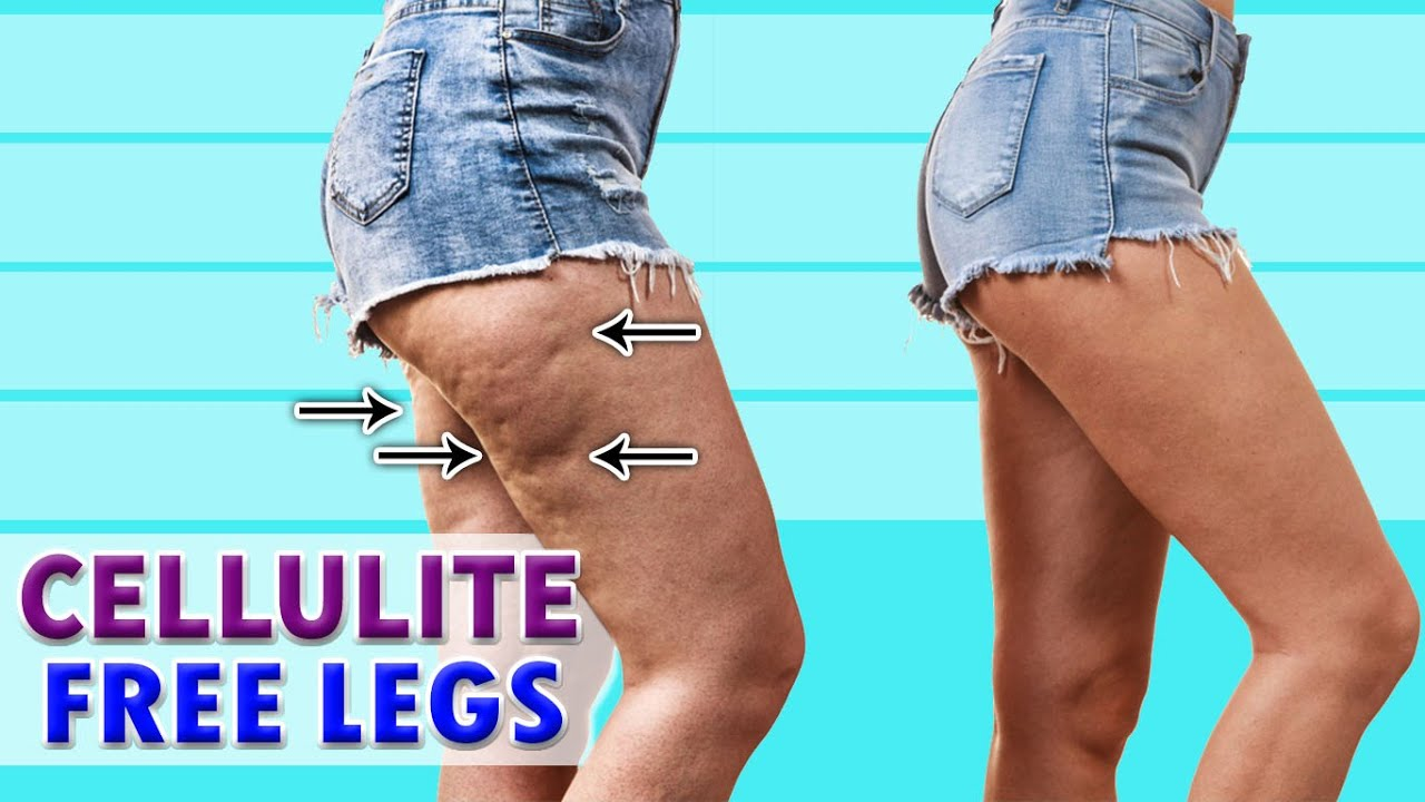CELLULITE FREE LEGS | Easy Summer Workout At Home | Full Workout
