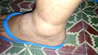De inchado tornozelo diferencial diagnóstico
