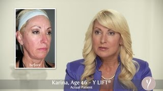 Y LIFT ® 2013 - Karina | Instant, Non Surgical Facelift