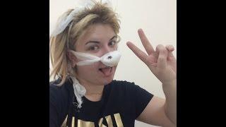 Мой рассказ о том как я пережила операцию на нос ( искривление носовой перегородки и вазотомия)