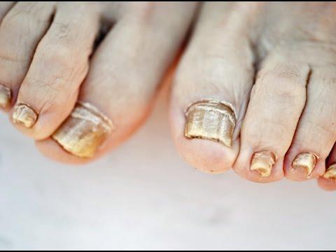 De por de que el hematoma sobre las uñas como curarle