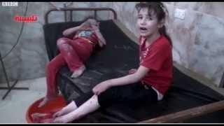 Россия убивает мирное население Сирии.