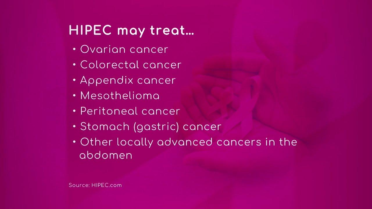 Cancer Treatment Hipec Youtube