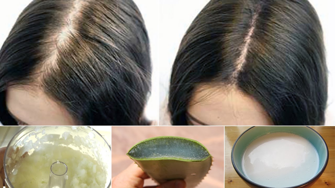 6 Proven Home Remedies For Hair Loss Youtube