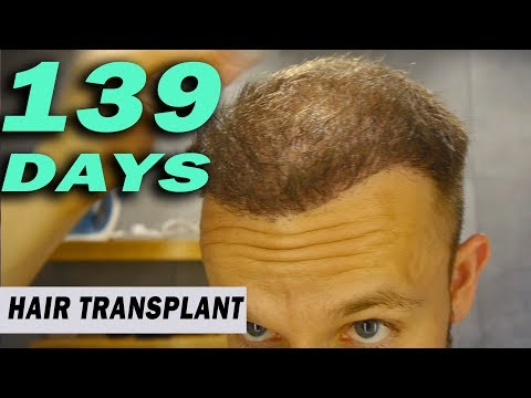FUE Hair Transplant 139 Days (post op) Istanbul, Turkey GROWTH STAGE