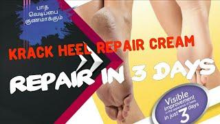 krack heel repair cream review in tamil | cracked heel treatment-happy feet