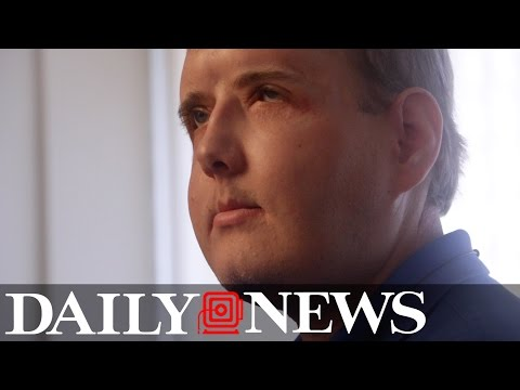 Patrick Hardison: One Year After Rare Face Transplant