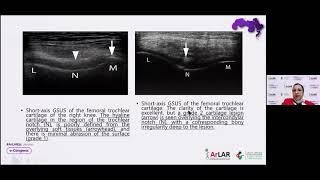 Hala Fayed || Cartilage Lesions