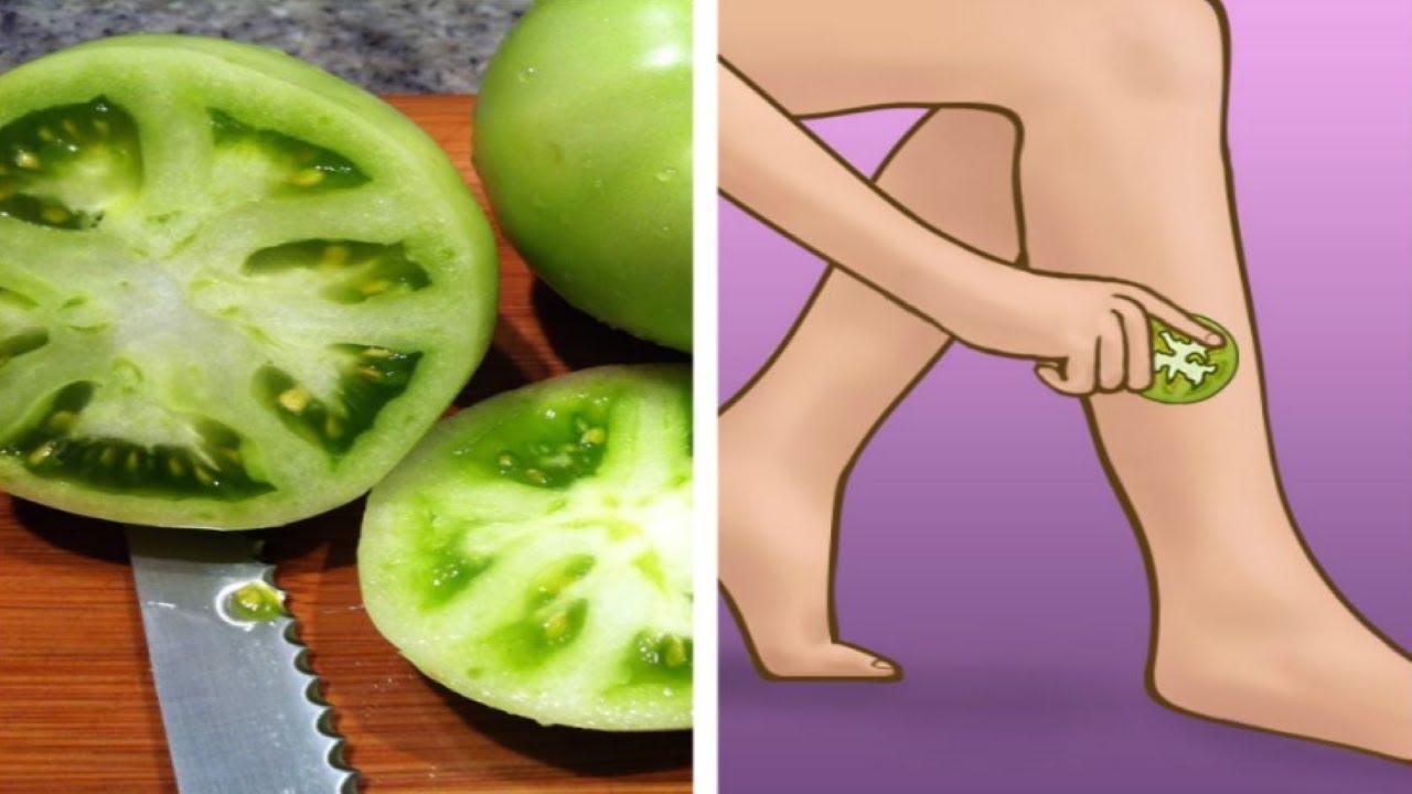 varicoză legume recenzii de tratament